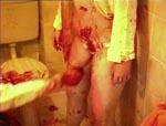 Thommys søster får kniven