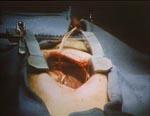 Fra filmens åbningssekvens - her et menneskehjerte, der går i stå