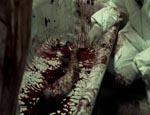 Et blodigt spor, der leder frem til morderen.